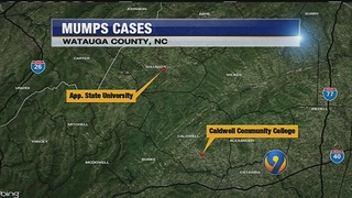 2 more mumps cases confirmed in Watauga County