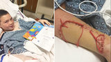 Boy describes Hilton Head shark attack: 'I'm dreaming, wake me up!'