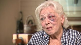 80-year-old woman attacked leaving physical therapy