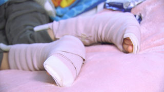 Father warns parents after son breaks both ankles at Hickory trampoline park