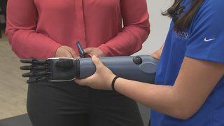 Charlotte teen gets 3D printed arm