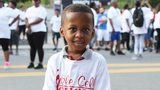 Stigma and pain for those living with sickle cell disease